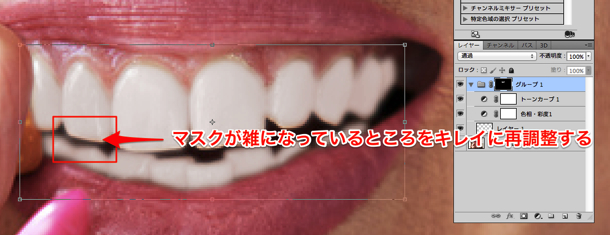 tooth_16